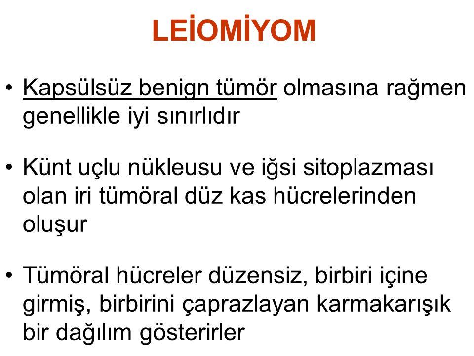LEİOMİYOM Kapsülsüz benign tümör olmasına rağmen genellikle iyi sınırlıdır.