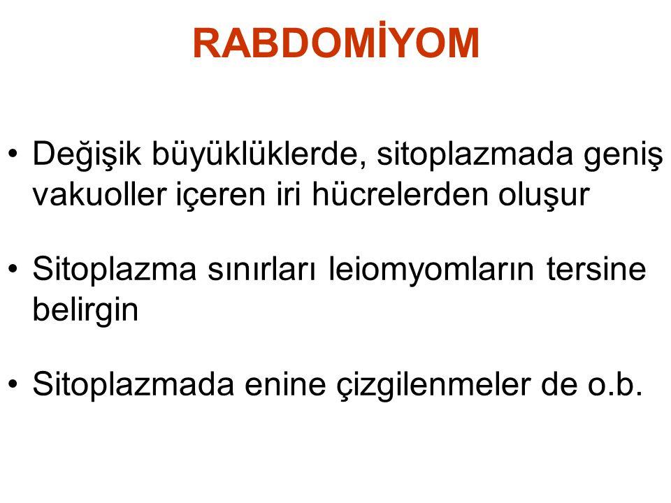 RABDOMİYOM Değişik büyüklüklerde, sitoplazmada geniş vakuoller içeren iri hücrelerden oluşur. Sitoplazma sınırları leiomyomların tersine belirgin.