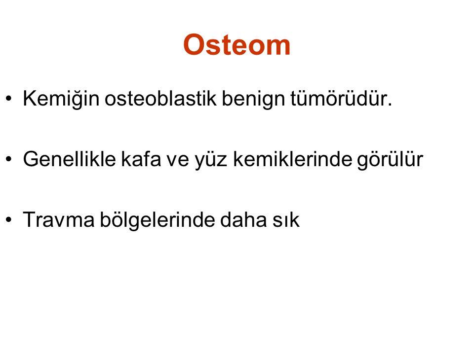 Osteom Kemiğin osteoblastik benign tümörüdür.