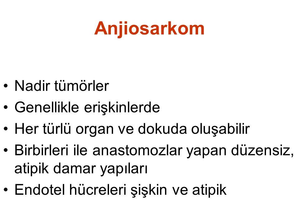 Anjiosarkom Nadir tümörler Genellikle erişkinlerde