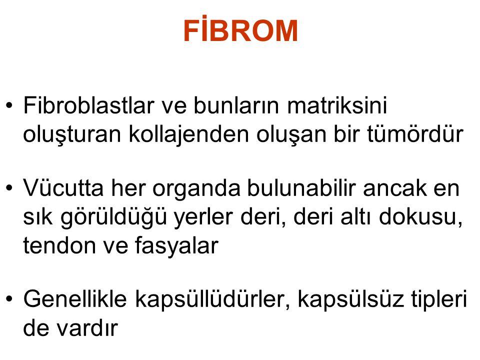 FİBROM Fibroblastlar ve bunların matriksini oluşturan kollajenden oluşan bir tümördür.