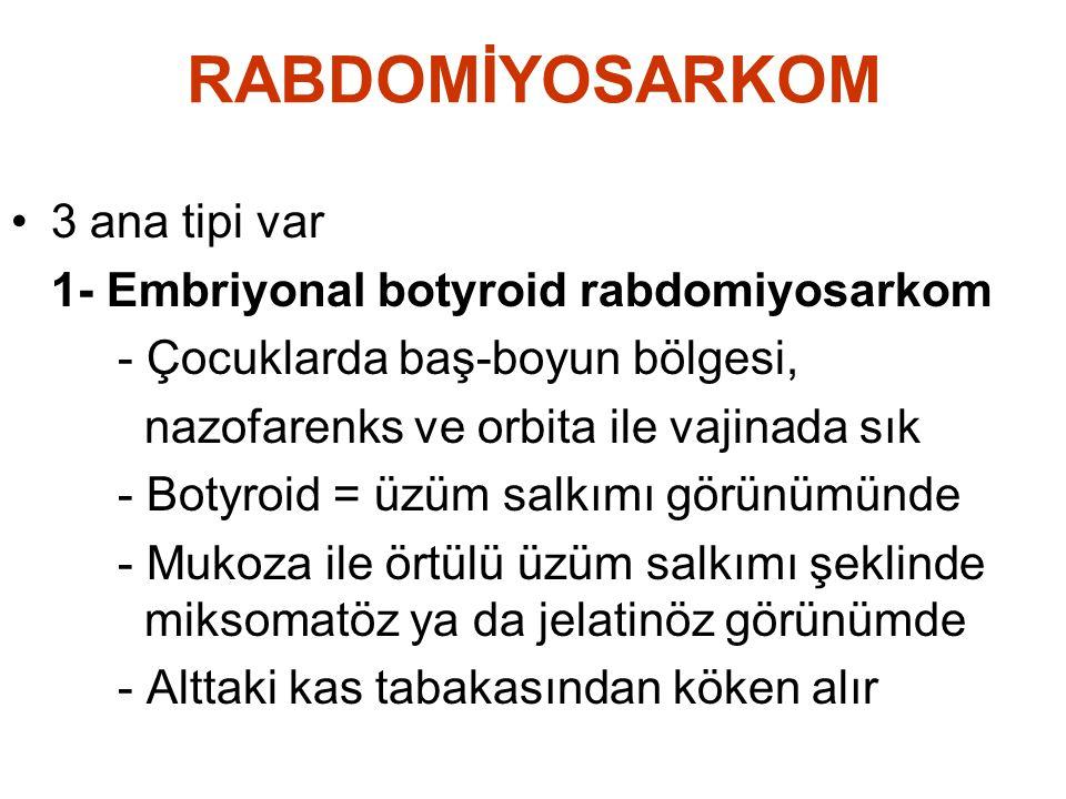 RABDOMİYOSARKOM 3 ana tipi var 1- Embriyonal botyroid rabdomiyosarkom