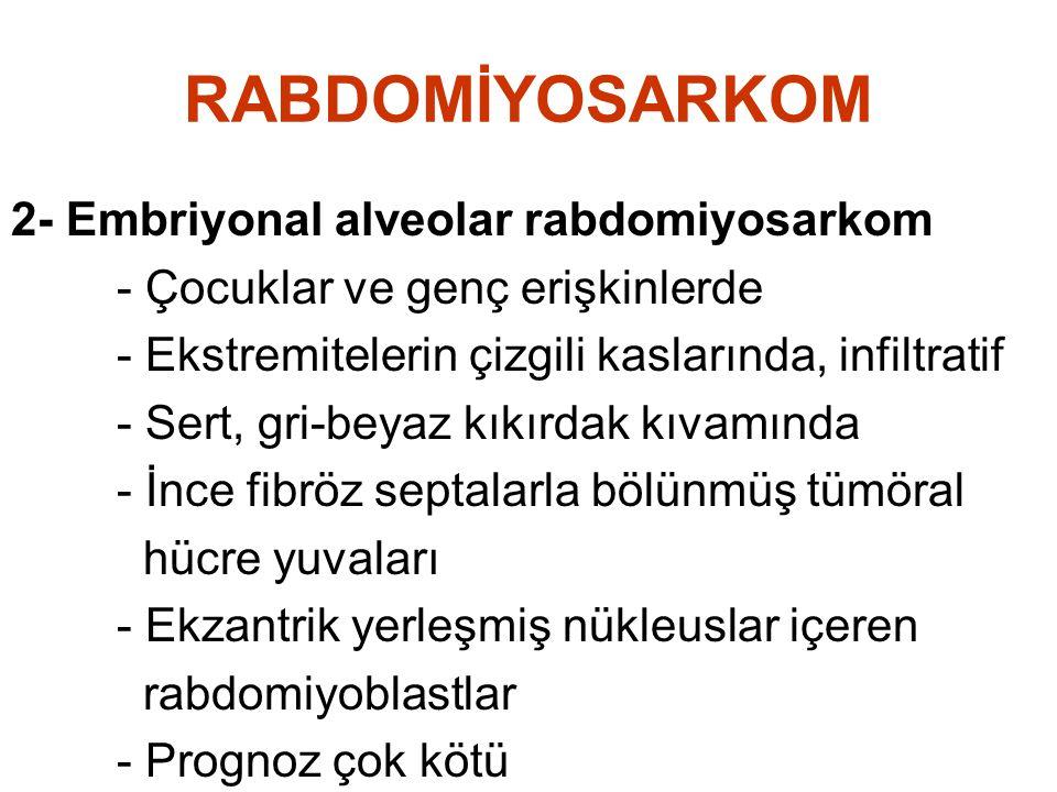 RABDOMİYOSARKOM 2- Embriyonal alveolar rabdomiyosarkom