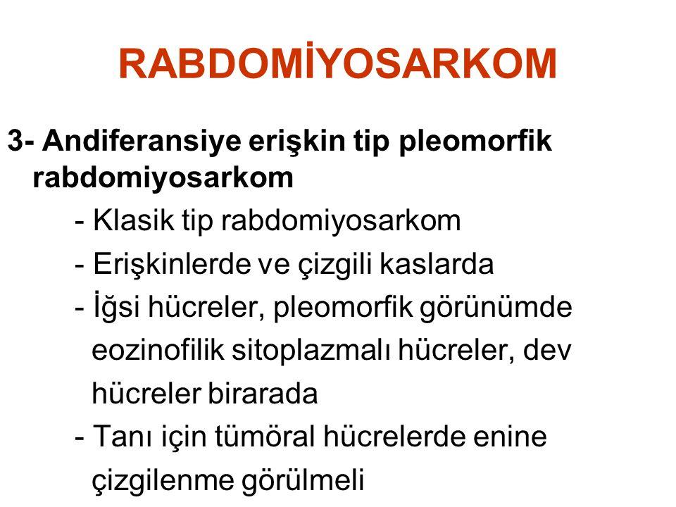 RABDOMİYOSARKOM 3- Andiferansiye erişkin tip pleomorfik rabdomiyosarkom. - Klasik tip rabdomiyosarkom.