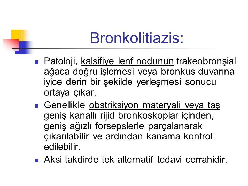 Bronkolitiazis:
