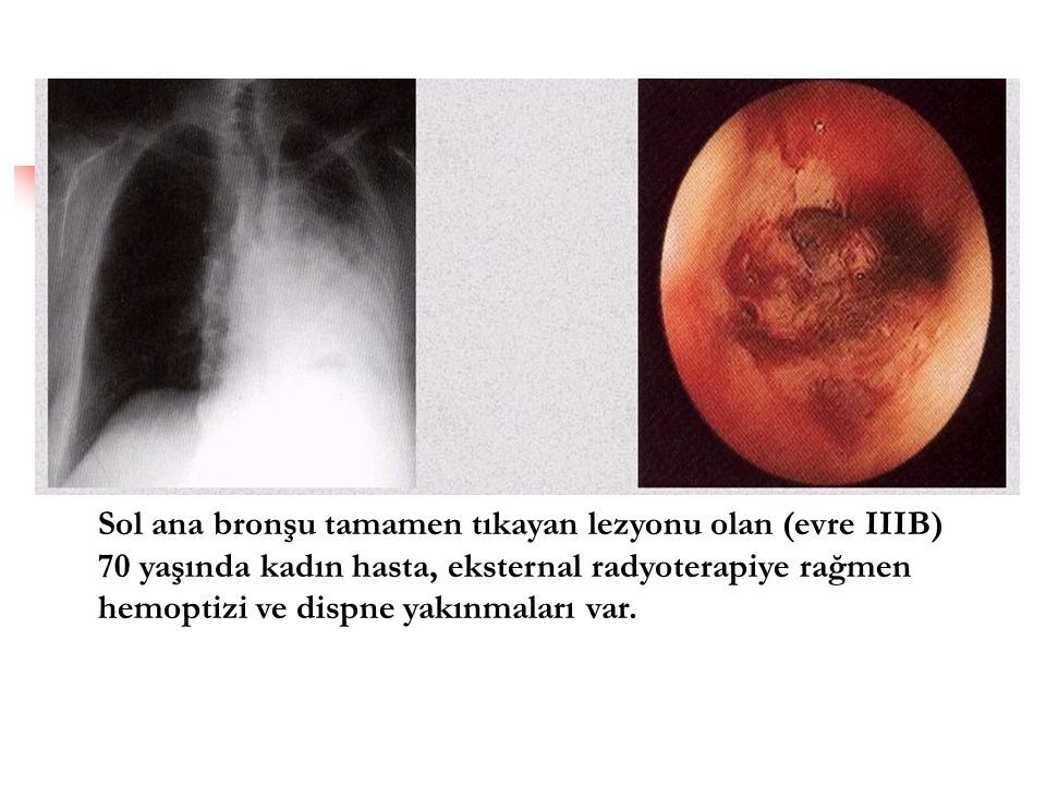Sol ana bronşu tamamen tıkayan lezyonu olan (evre IIIB) 70 yaşında kadın hasta, eksternal radyoterapiye rağmen hemoptizi ve dispne yakınmaları var.