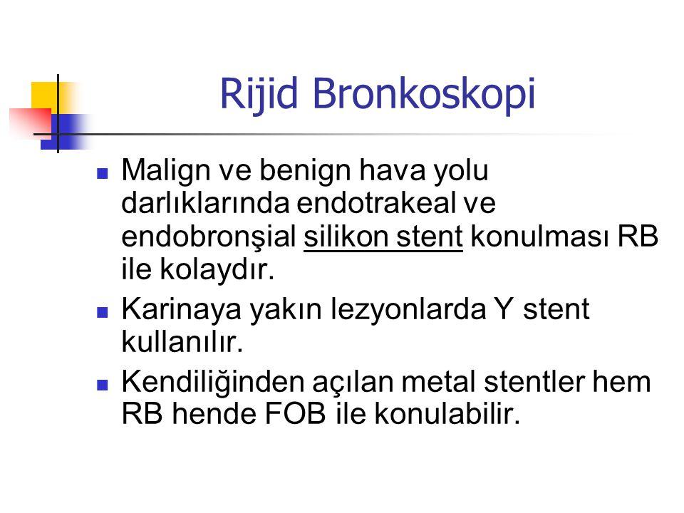 Rijid Bronkoskopi Malign ve benign hava yolu darlıklarında endotrakeal ve endobronşial silikon stent konulması RB ile kolaydır.