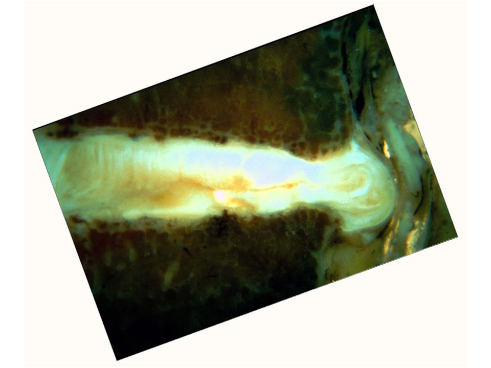 This is a sagittal view of a degenerated disc with a significant posterior herniation. It can be seen to distort the neural structures posteriorly. Although such a disruption could well cause radicular symptoms, internally disrupted discs without herniations often cause pain referred to the lower limbs.