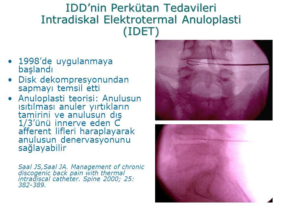 IDD'nin Perkütan Tedavileri Intradiskal Elektrotermal Anuloplasti (IDET)