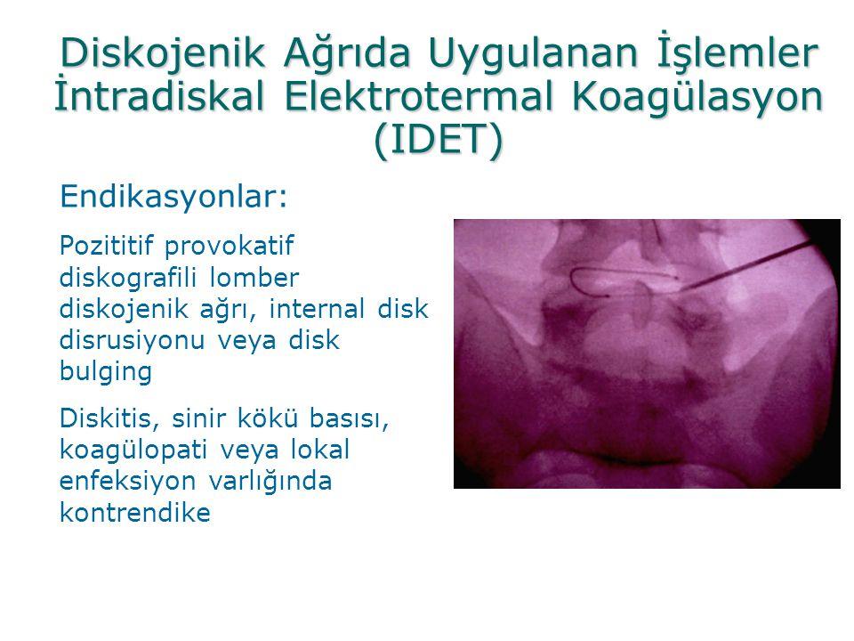 Diskojenik Ağrıda Uygulanan İşlemler İntradiskal Elektrotermal Koagülasyon (IDET)