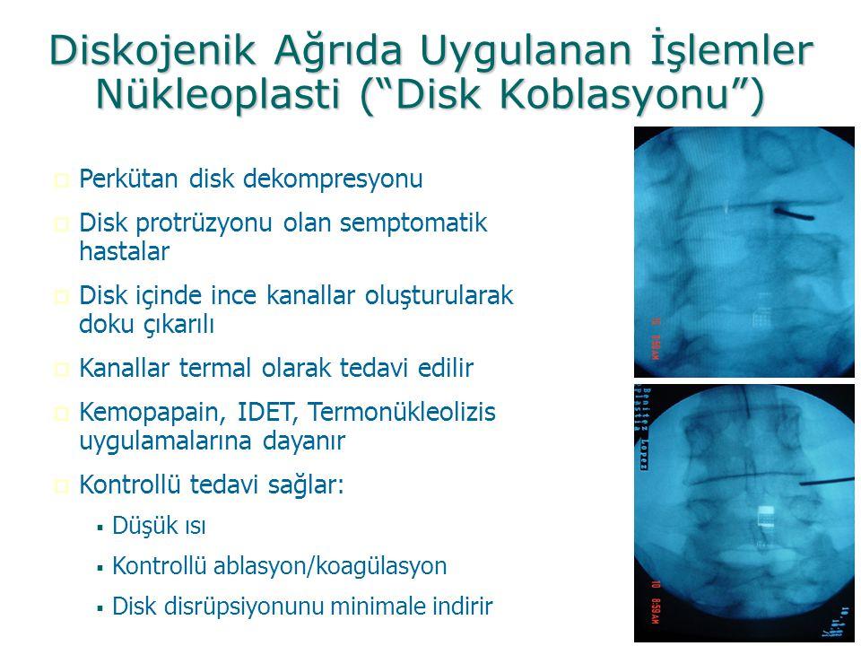 Diskojenik Ağrıda Uygulanan İşlemler Nükleoplasti ( Disk Koblasyonu )