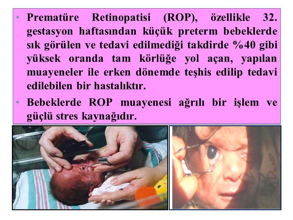 Prematüre Retinopatisi (ROP), özellikle 32