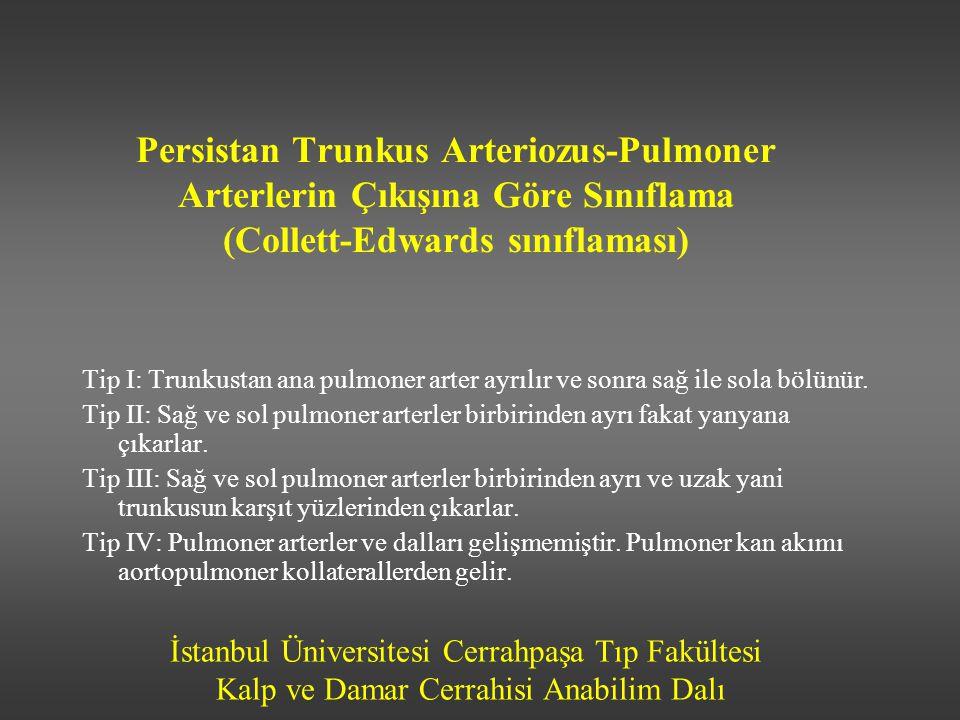 Persistan Trunkus Arteriozus-Pulmoner Arterlerin Çıkışına Göre Sınıflama (Collett-Edwards sınıflaması)