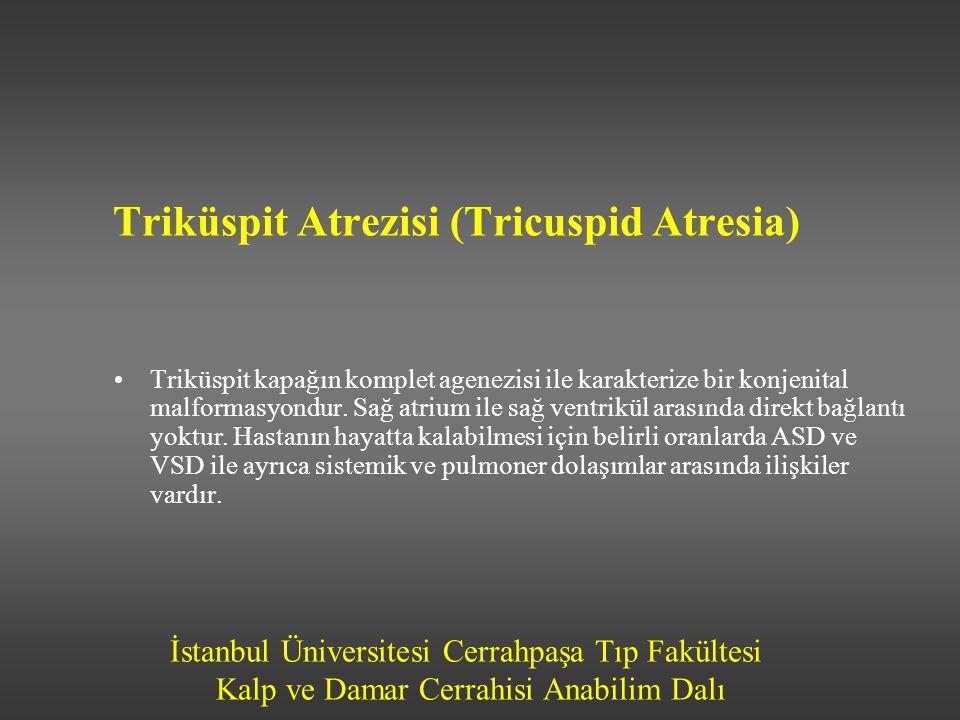 Triküspit Atrezisi (Tricuspid Atresia)