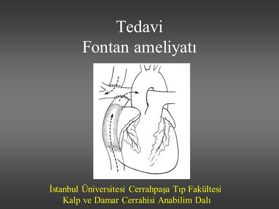 Tedavi Fontan ameliyatı