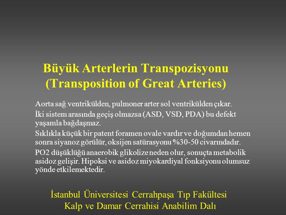 Büyük Arterlerin Transpozisyonu (Transposition of Great Arteries)