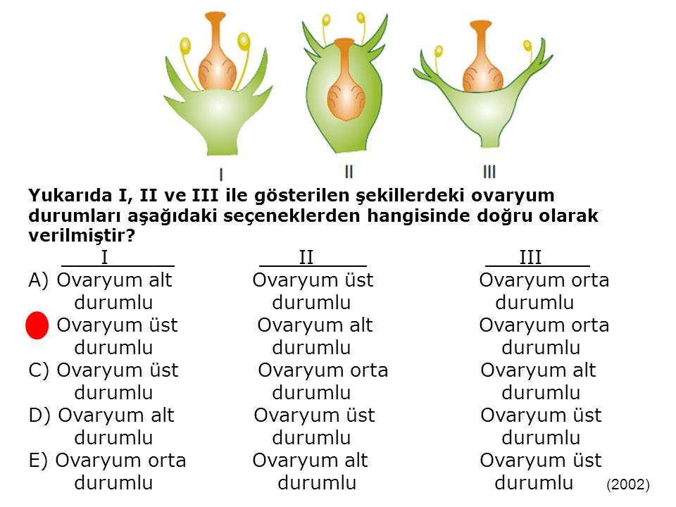 A) Ovaryum alt Ovaryum üst Ovaryum orta durumlu durumlu durumlu