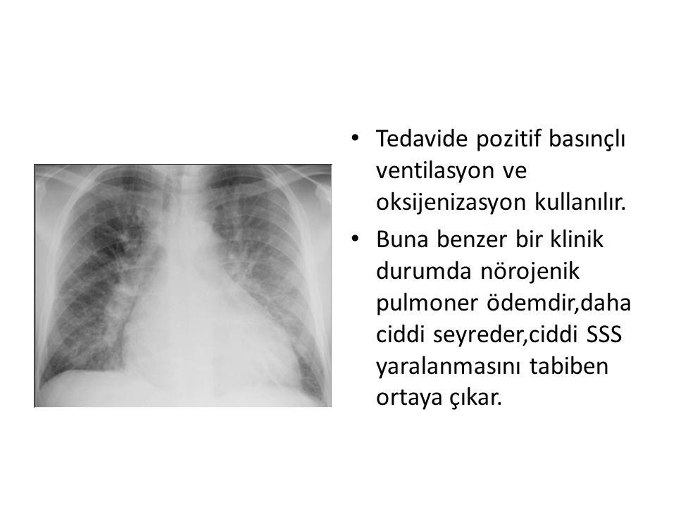 Tedavide pozitif basınçlı ventilasyon ve oksijenizasyon kullanılır.
