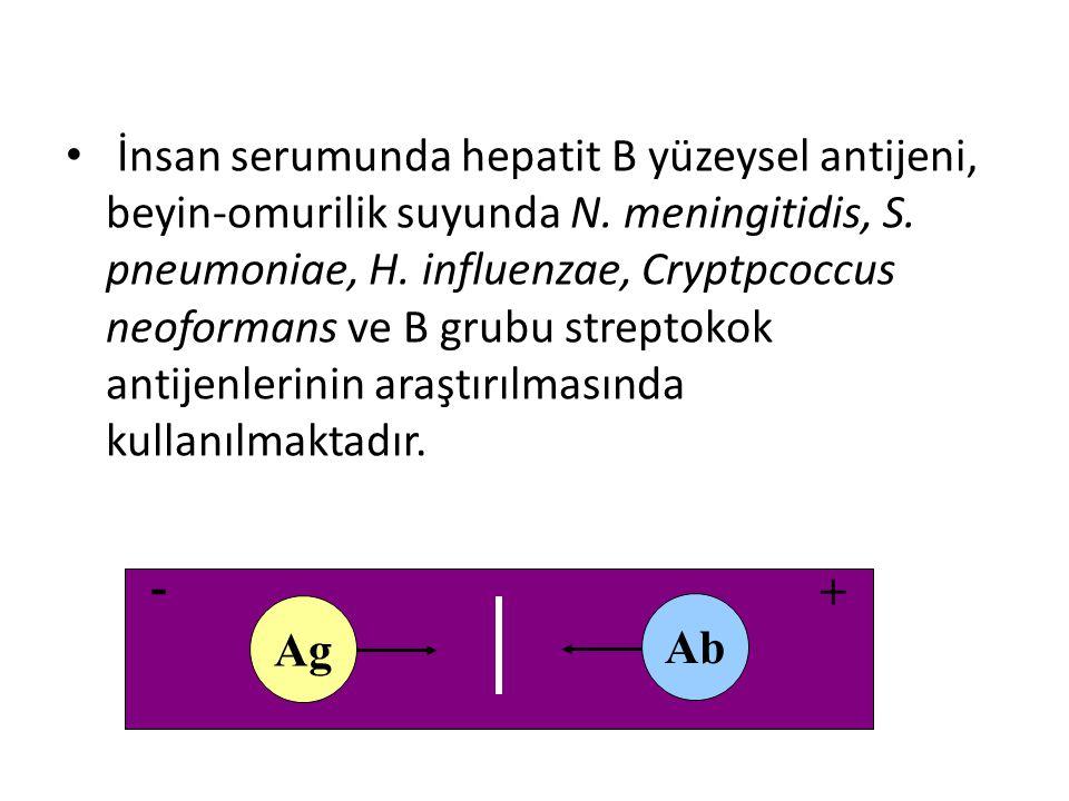 İnsan serumunda hepatit B yüzeysel antijeni, beyin-omurilik suyunda N