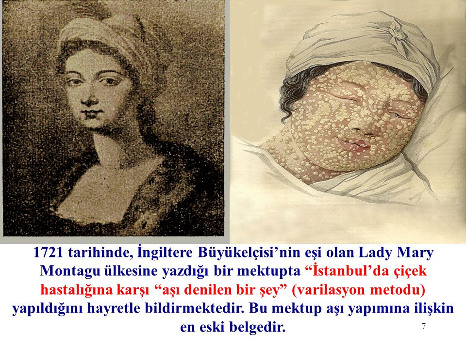 1721 tarihinde, İngiltere Büyükelçisi'nin eşi olan Lady Mary Montagu ülkesine yazdığı bir mektupta İstanbul'da çiçek hastalığına karşı aşı denilen bir şey (varilasyon metodu) yapıldığını hayretle bildirmektedir. Bu mektup aşı yapımına ilişkin en eski belgedir.