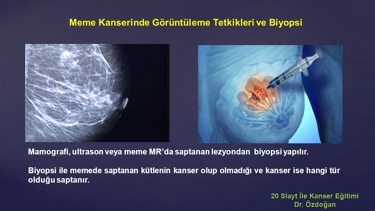 Meme Kanserinde Görüntüleme Tetkikleri ve Biyopsi