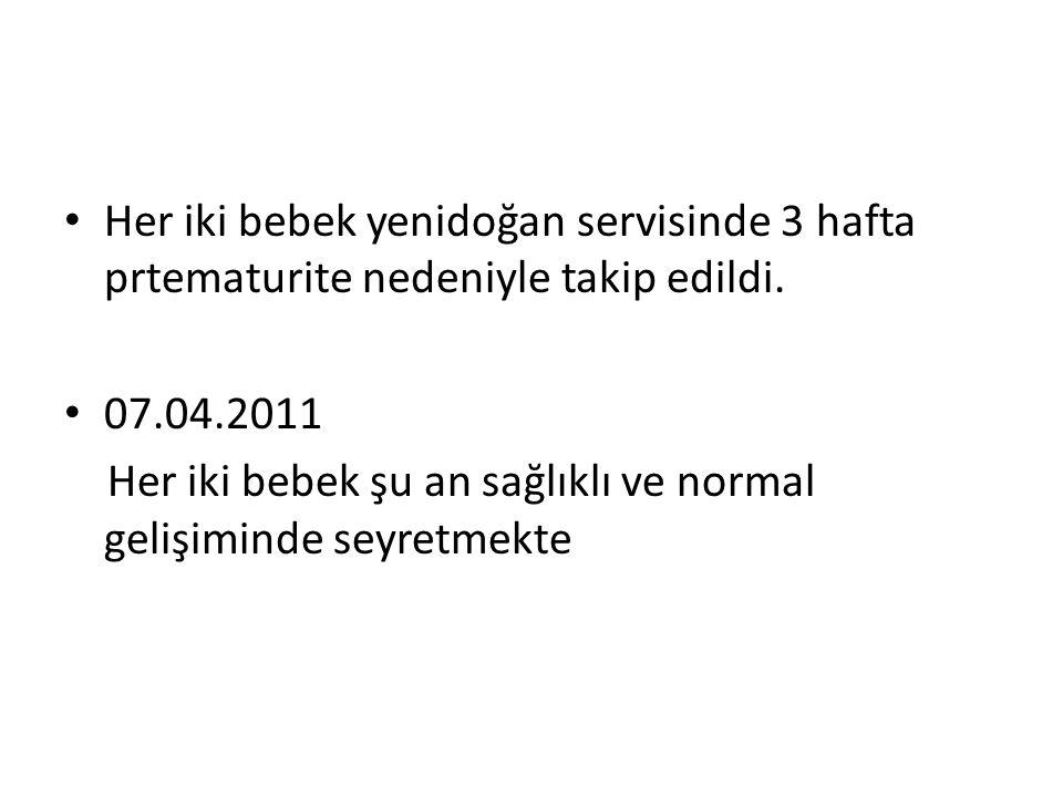 Her iki bebek yenidoğan servisinde 3 hafta prtematurite nedeniyle takip edildi.