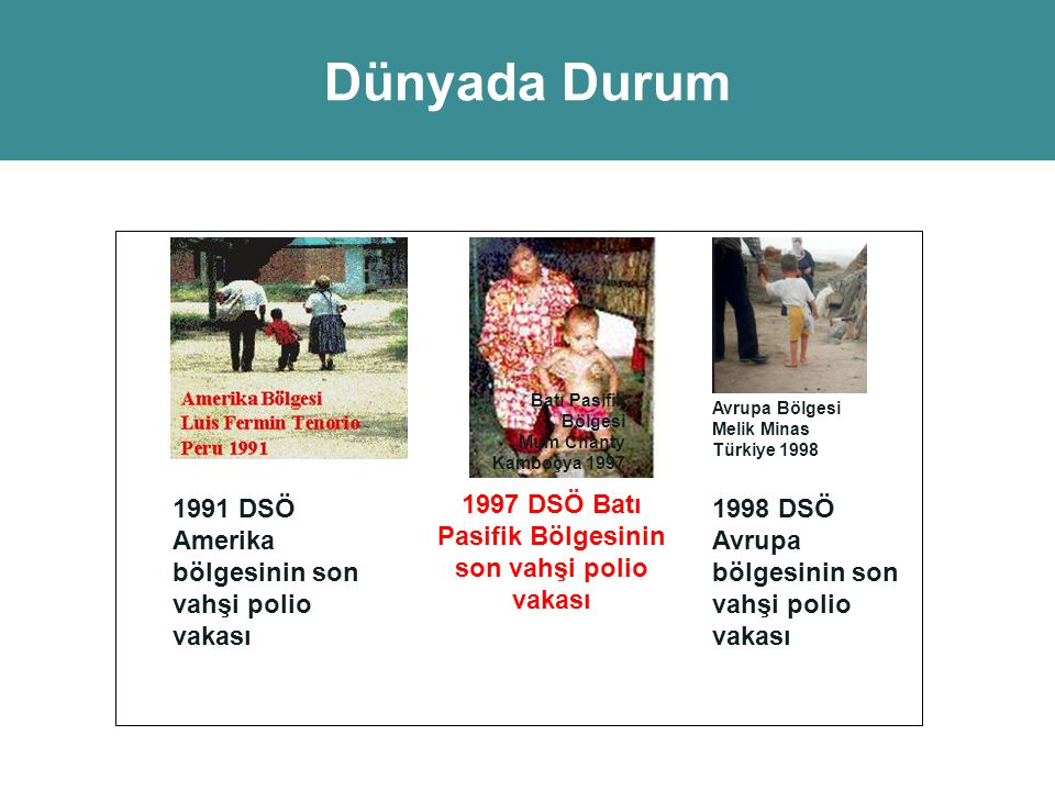 1997 DSÖ Batı Pasifik Bölgesinin son vahşi polio vakası
