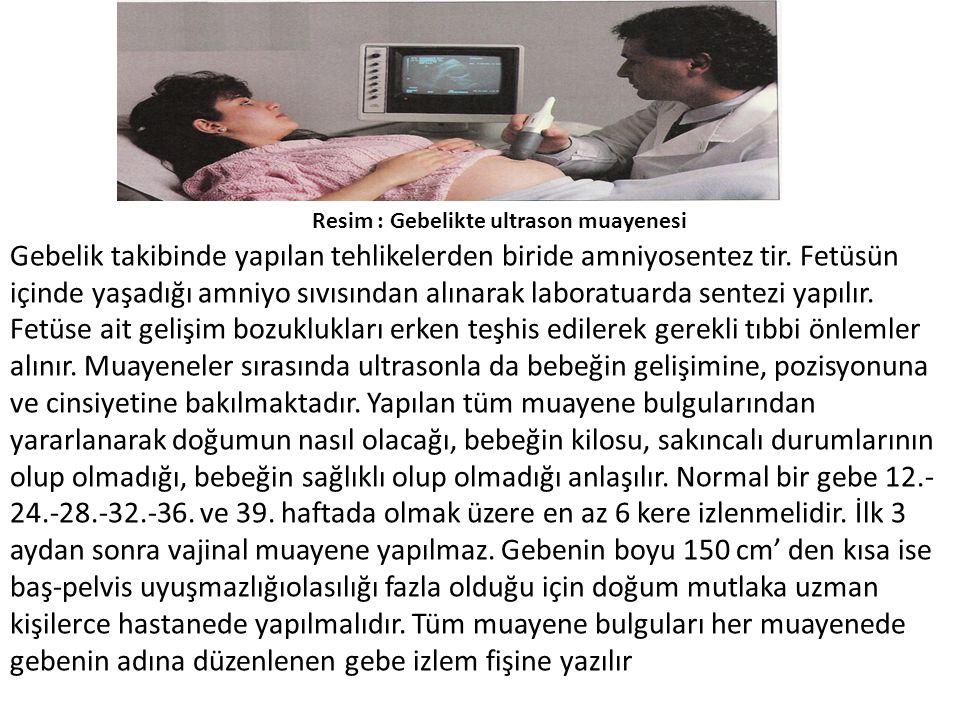 Resim : Gebelikte ultrason muayenesi
