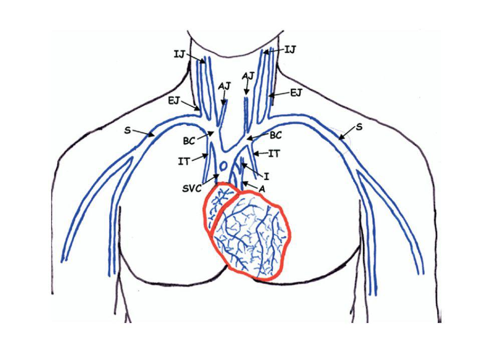 Figure 2. Diagram showing the central veins where catheter malpositioning occurs.