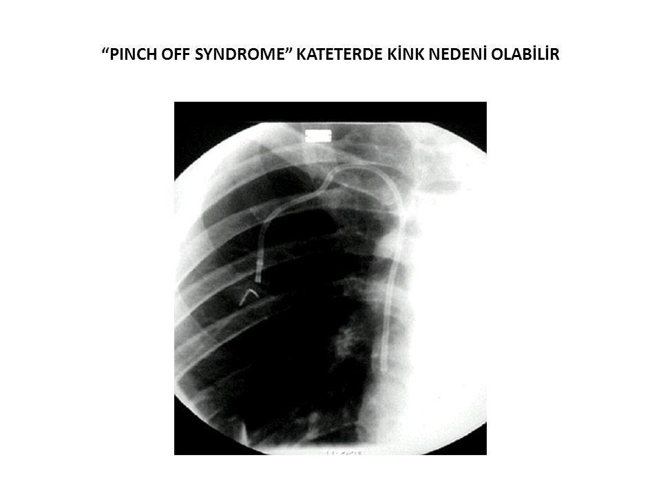 PINCH OFF SYNDROME KATETERDE KİNK NEDENİ OLABİLİR