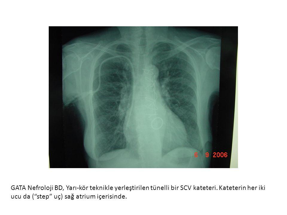 GATA Nefroloji BD, Yarı-kör teknikle yerleştirilen tünelli bir SCV kateteri.