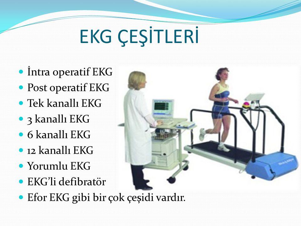 EKG ÇEŞİTLERİ İntra operatif EKG Post operatif EKG Tek kanallı EKG