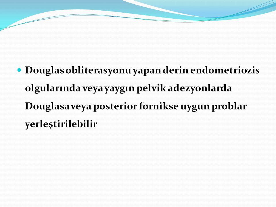 Douglas obliterasyonu yapan derin endometriozis olgularında veya yaygın pelvik adezyonlarda Douglasa veya posterior fornikse uygun problar yerleştirilebilir