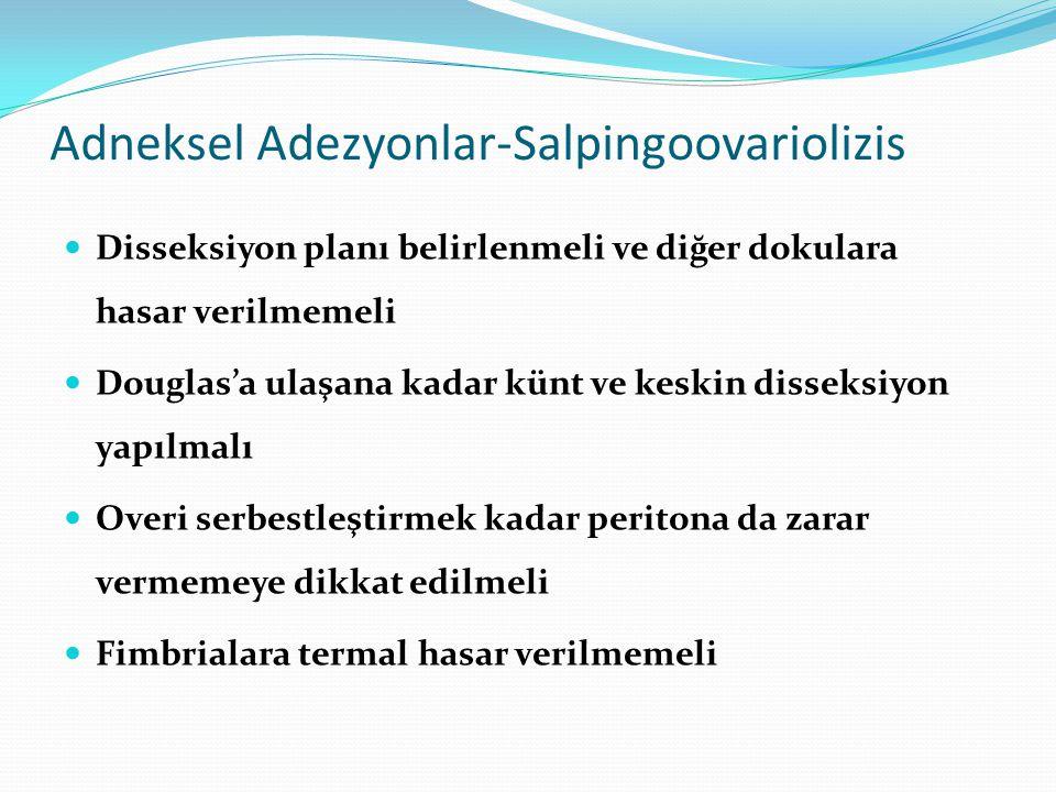 Adneksel Adezyonlar-Salpingoovariolizis