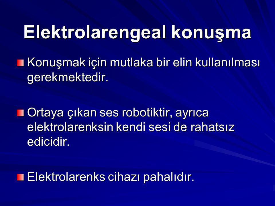 Elektrolarengeal konuşma