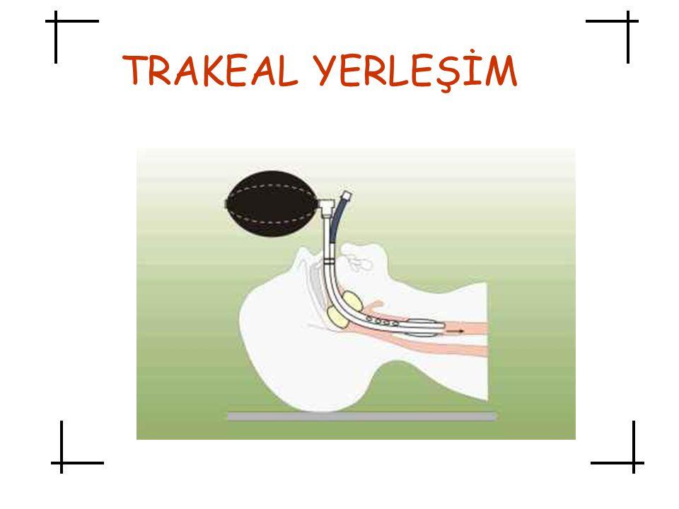 TRAKEAL YERLEŞİM