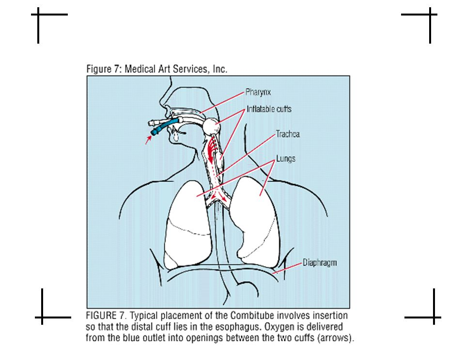 Esophageal tracheal double lumen airway (Combitube)