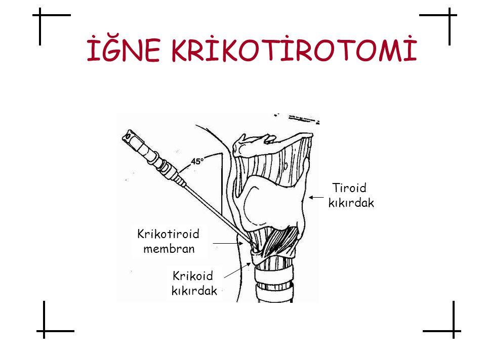 İĞNE KRİKOTİROTOMİ Tiroid kıkırdak Krikotiroid membran Krikoid