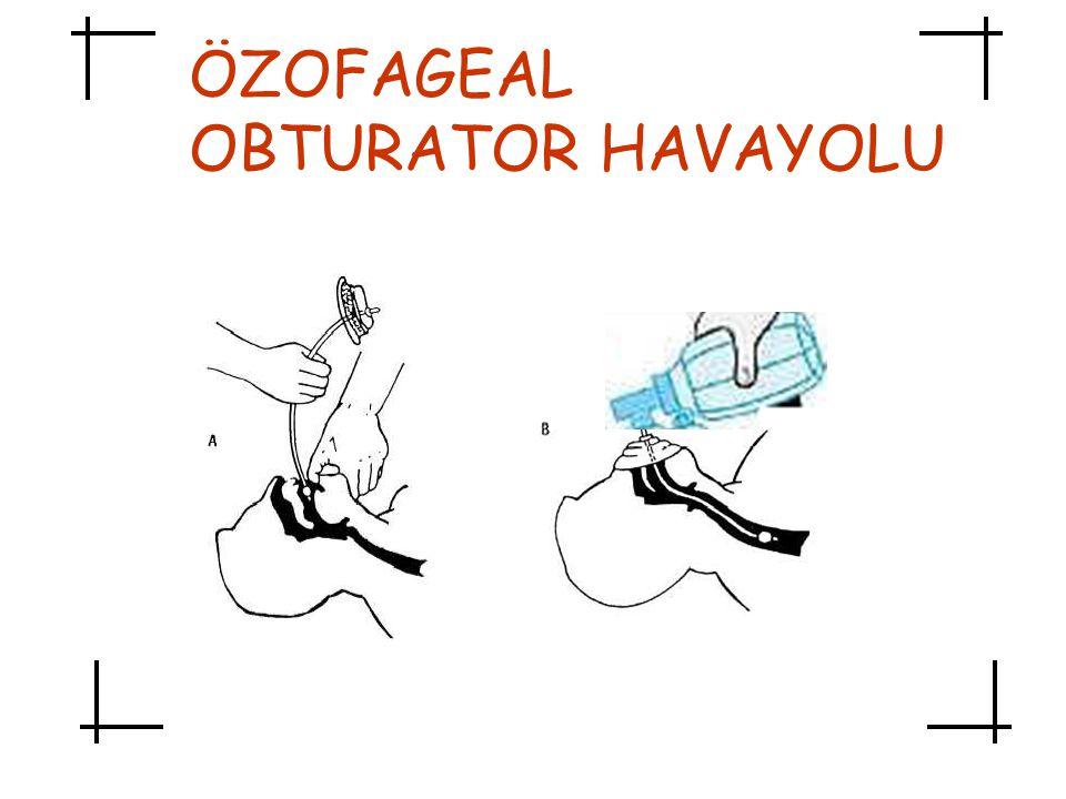 ÖZOFAGEAL OBTURATOR HAVAYOLU