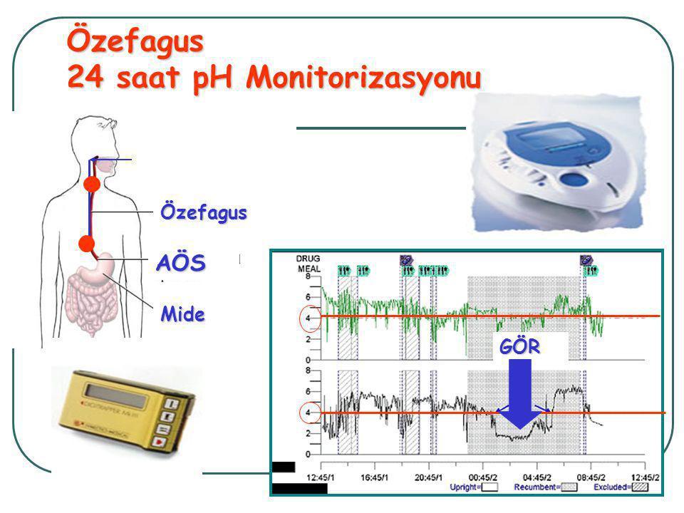 Özefagus 24 saat pH Monitorizasyonu