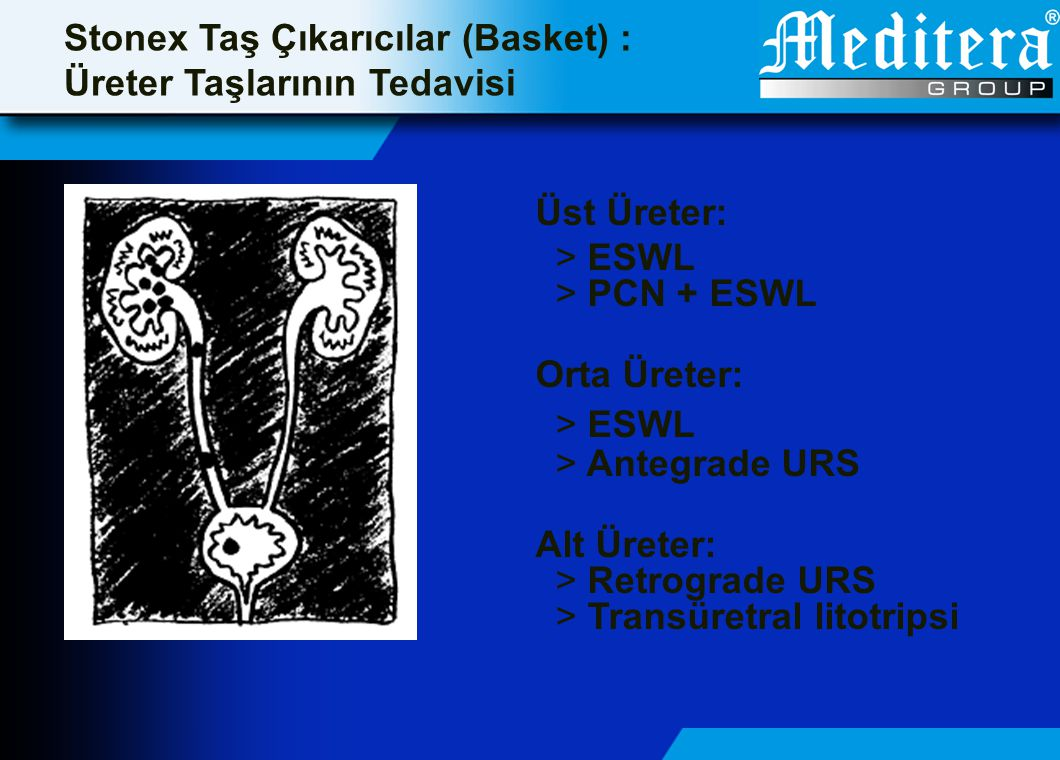 Stonex Taş Çıkarıcılar (Basket) : Üreter Taşlarının Tedavisi