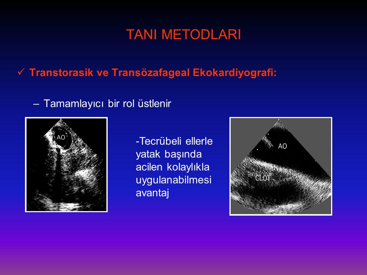TANI METODLARI Transtorasik ve Transözafageal Ekokardiyografi: