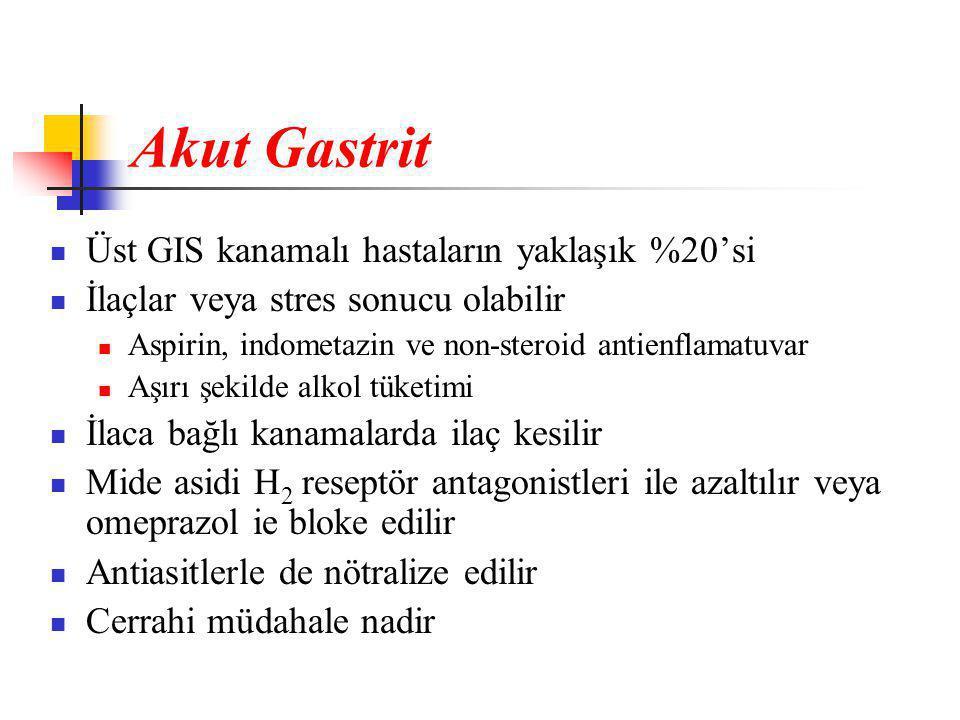 Akut Gastrit Üst GIS kanamalı hastaların yaklaşık %20'si