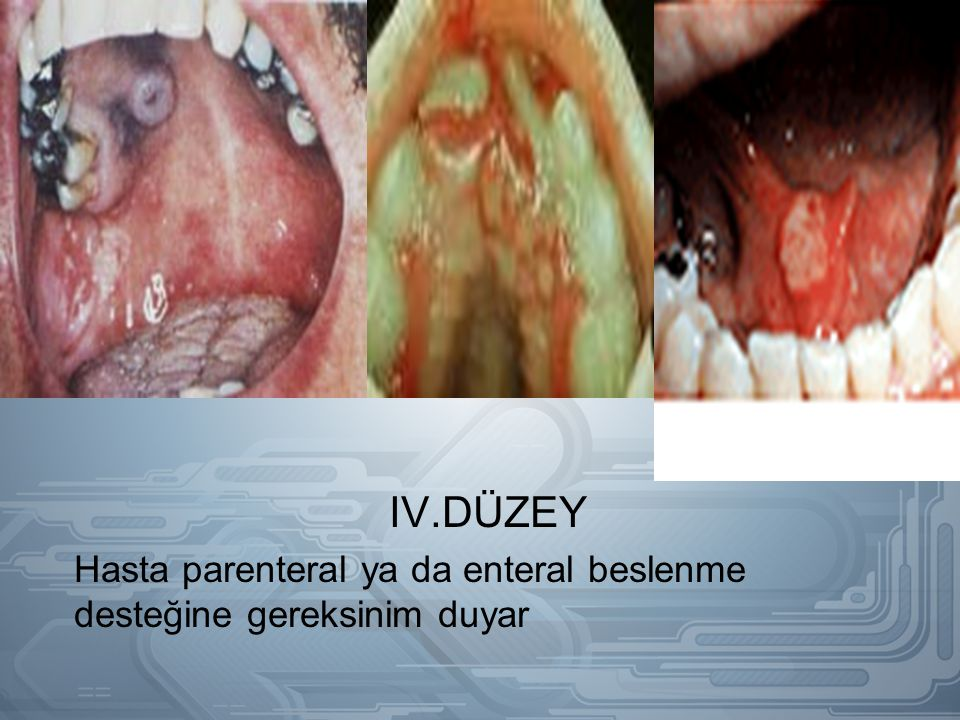 IV.DÜZEY Hasta parenteral ya da enteral beslenme desteğine gereksinim duyar