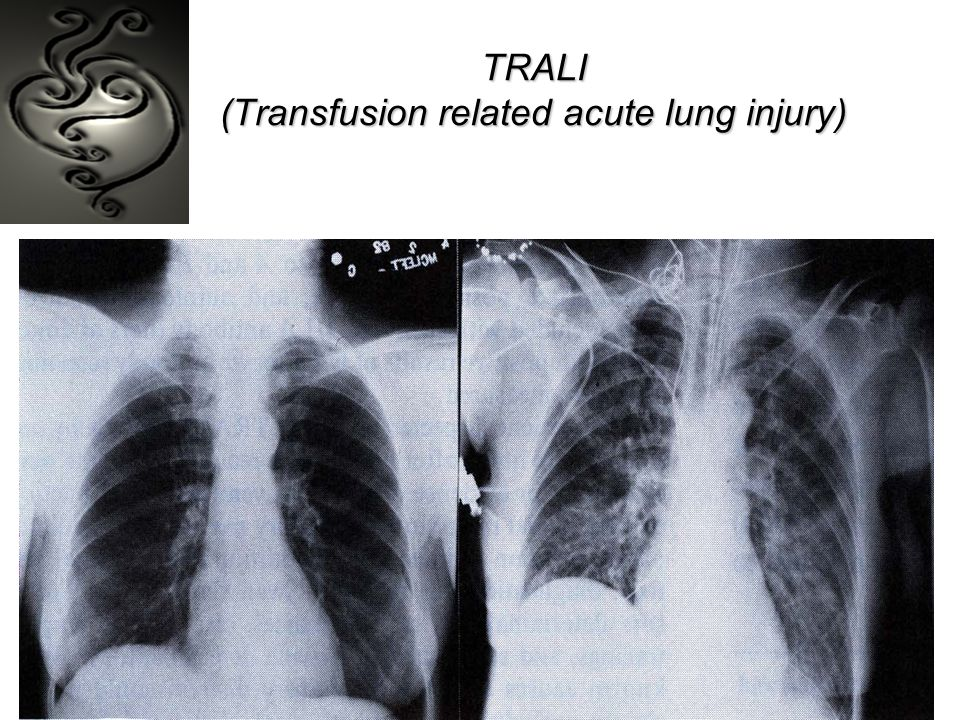 TRALI (Transfusion related acute lung injury)