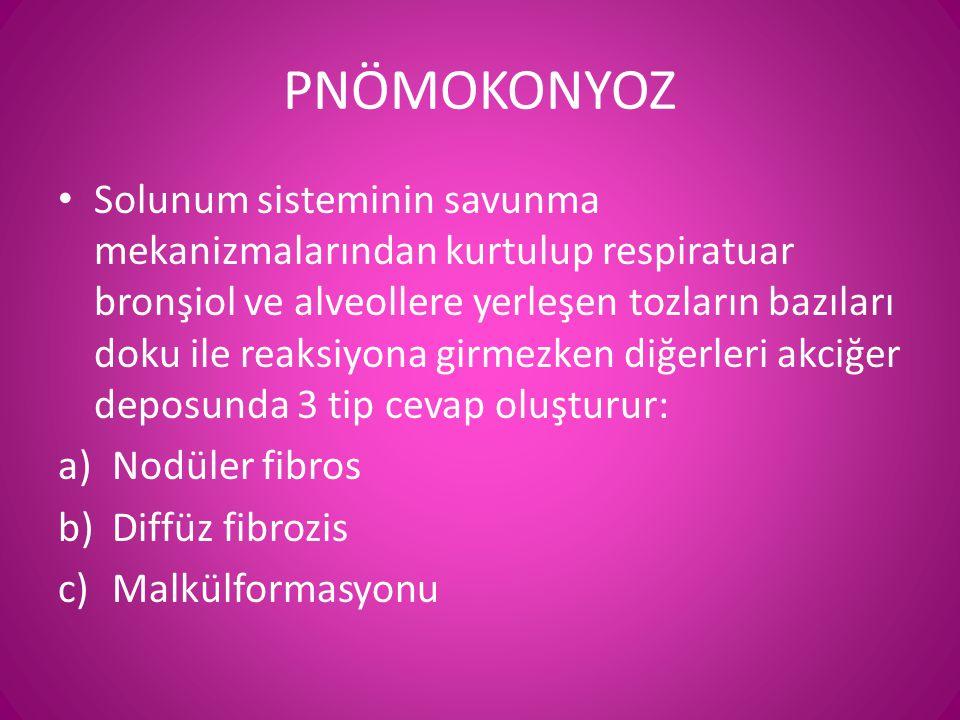 PNÖMOKONYOZ