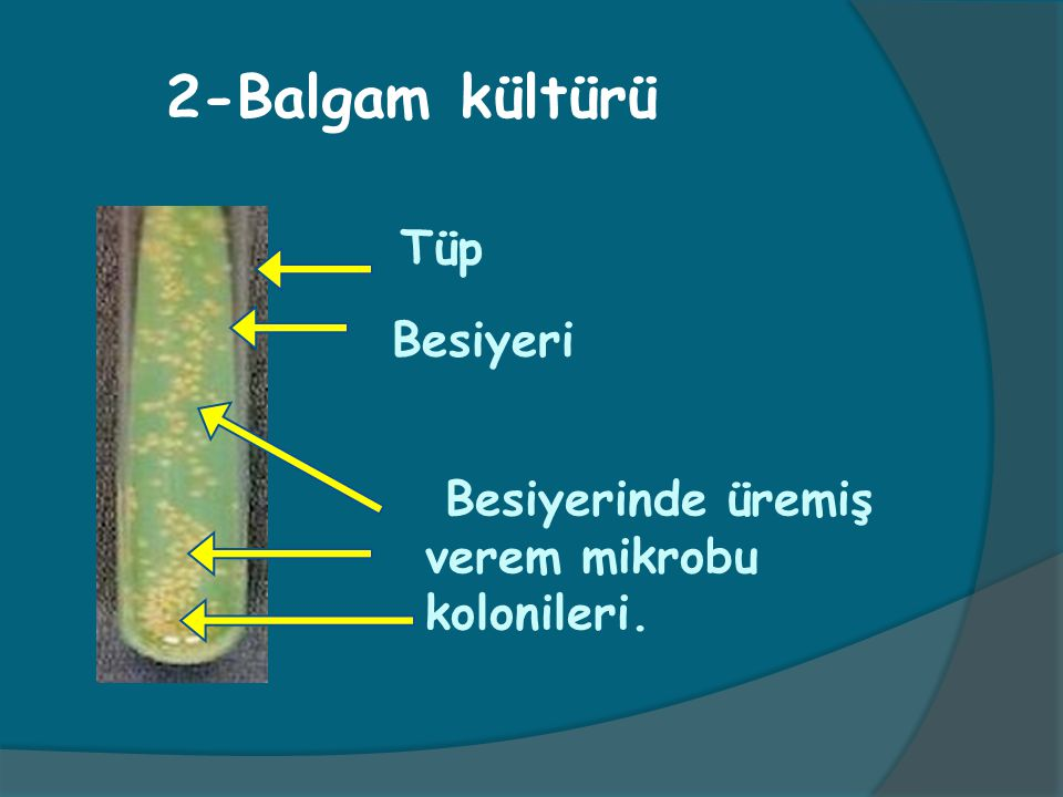 2-Balgam kültürü Tüp Besiyeri Besiyerinde üremiş