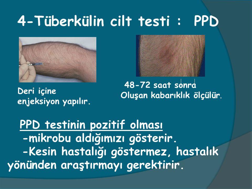 4-Tüberkülin cilt testi : PPD