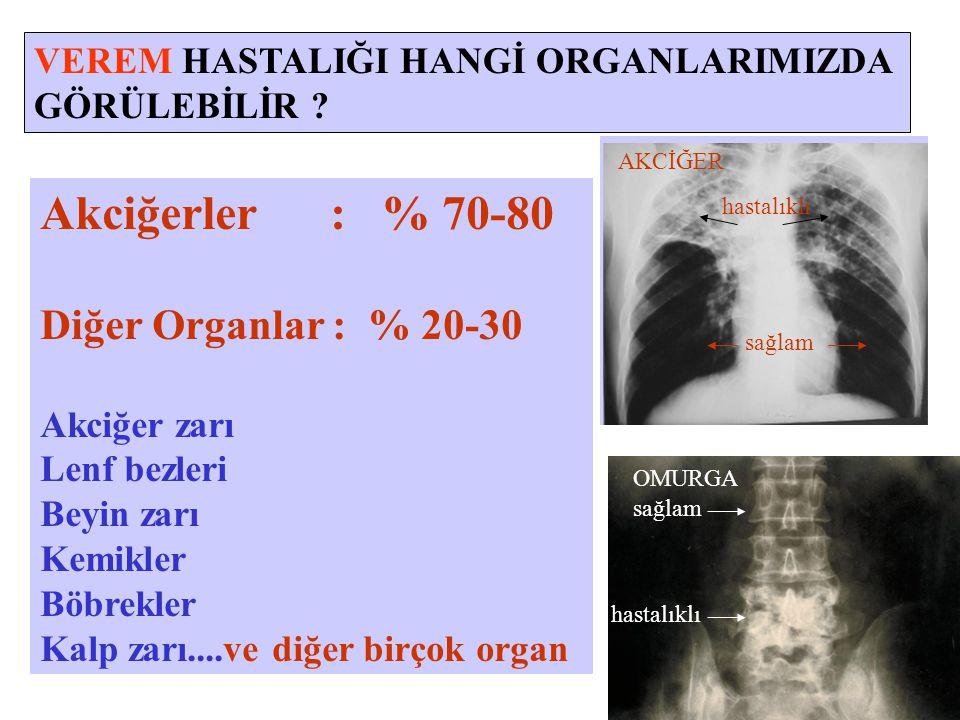 Akciğerler : % 70-80 Diğer Organlar : % 20-30