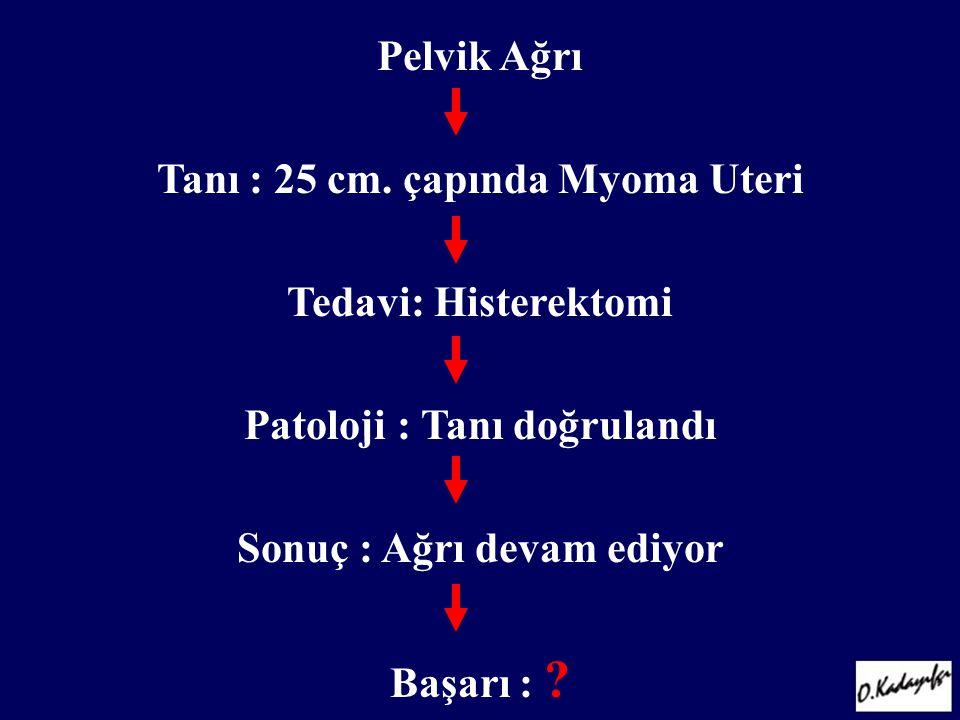 Tanı : 25 cm. çapında Myoma Uteri Tedavi: Histerektomi